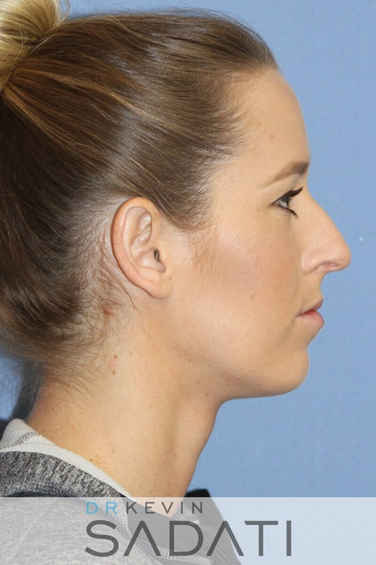 Rhinoplasty Right Side View Before