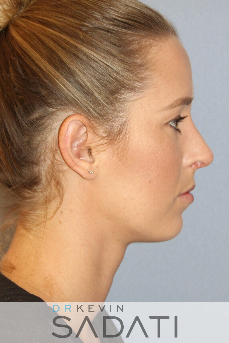 Rhinoplasty Right Side View After