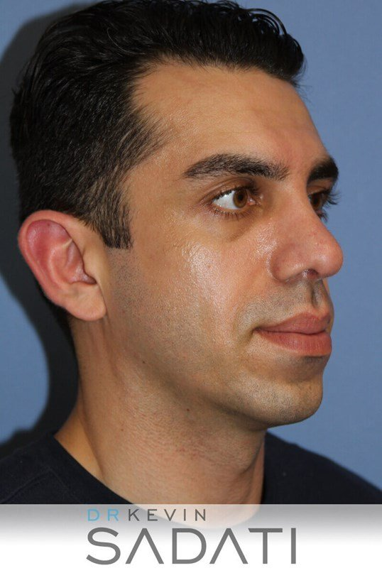 Male Rhinoplasty Oblique View After
