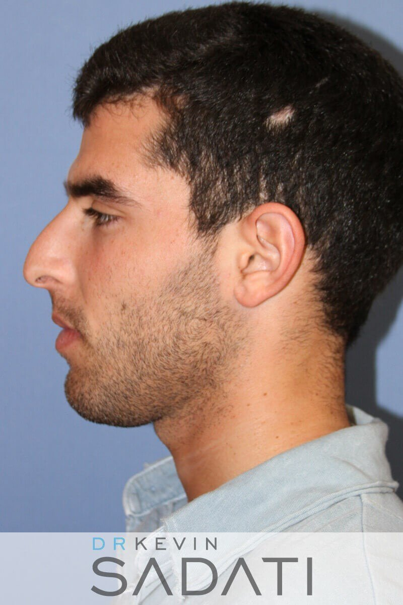 Male Rhinoplasty Left View Before