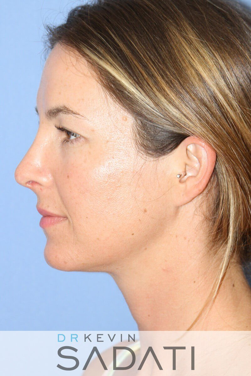 Tip Rhinoplasty Left View After