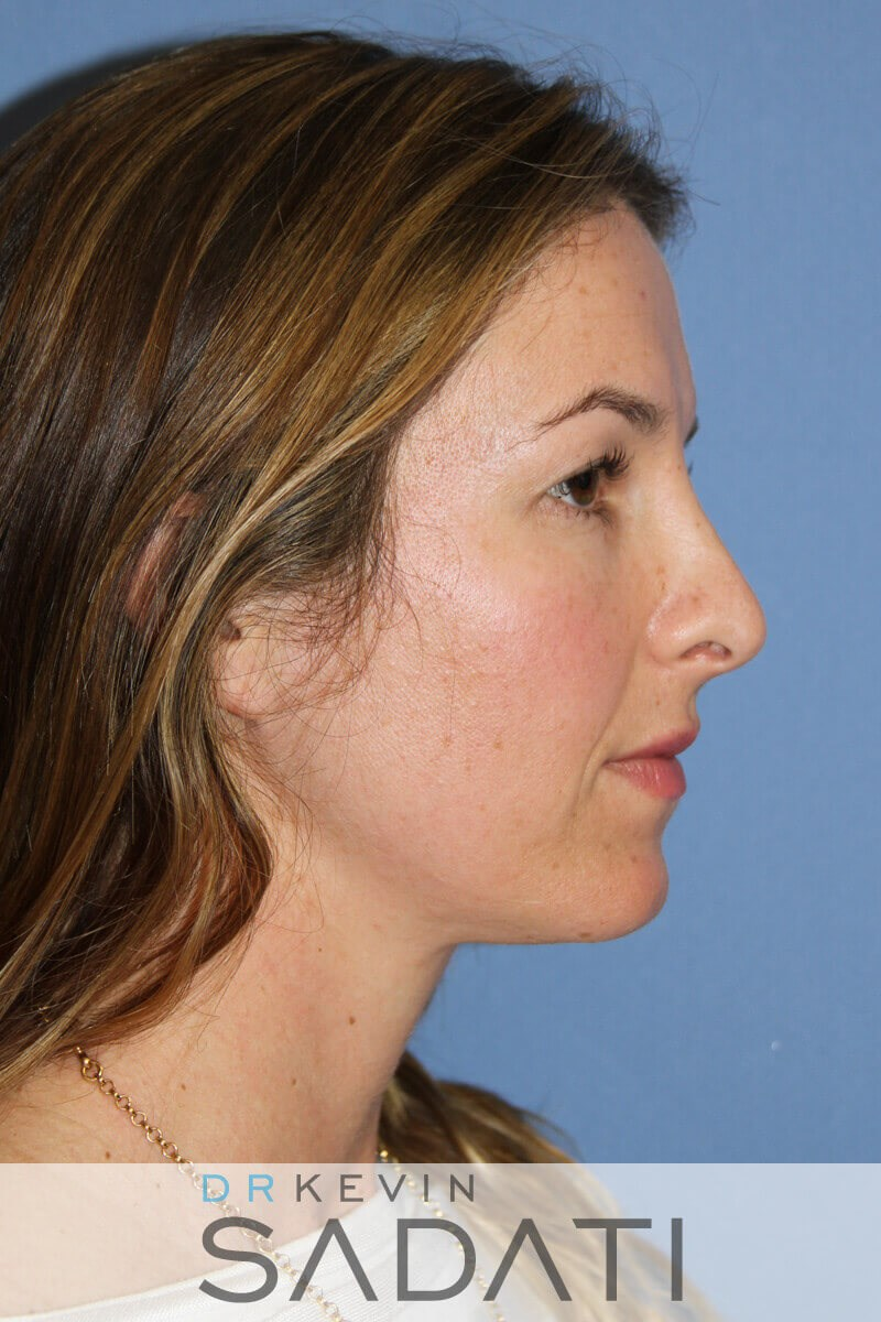 Tip Rhinoplasty Right View Before