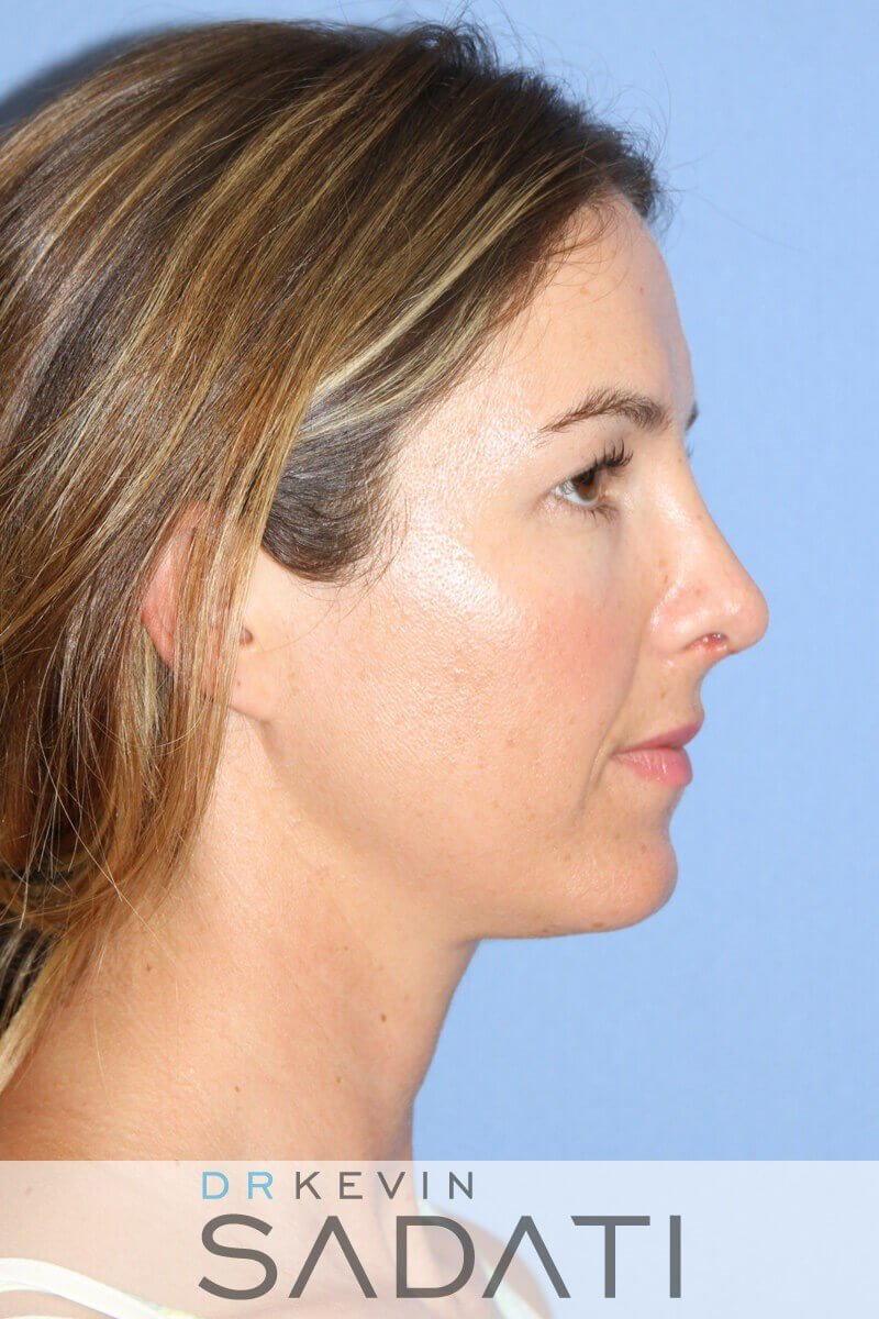 Tip Rhinoplasty Right View After