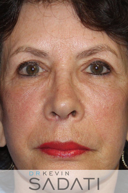 Newport Beach Eye Lid Surgery to rejuvenate puffy, sagging