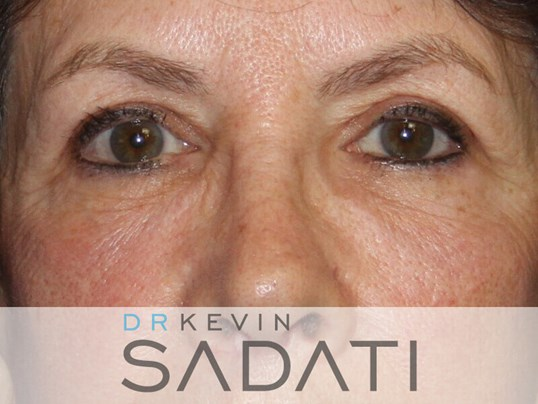 Eyelid Surgery Before & After After