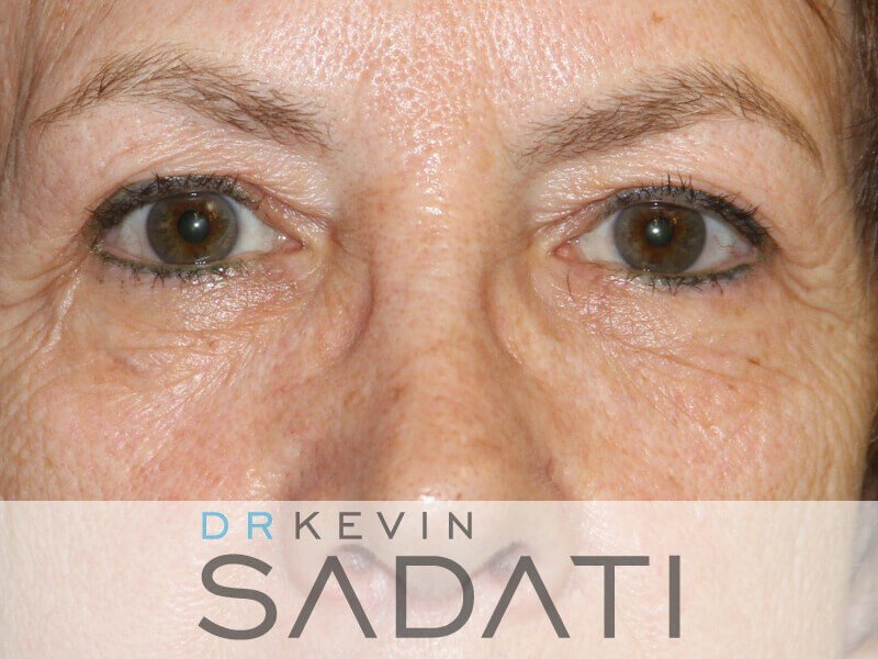 Eyelid Surgery Before & After Before