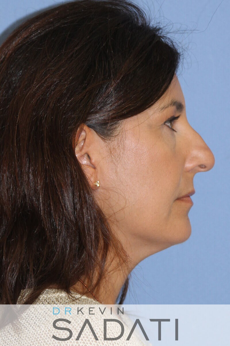 SeptoRhinoplasty Right View Before