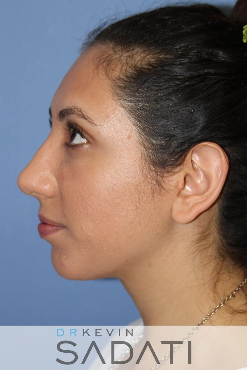 Rhinoplasty Left View Before