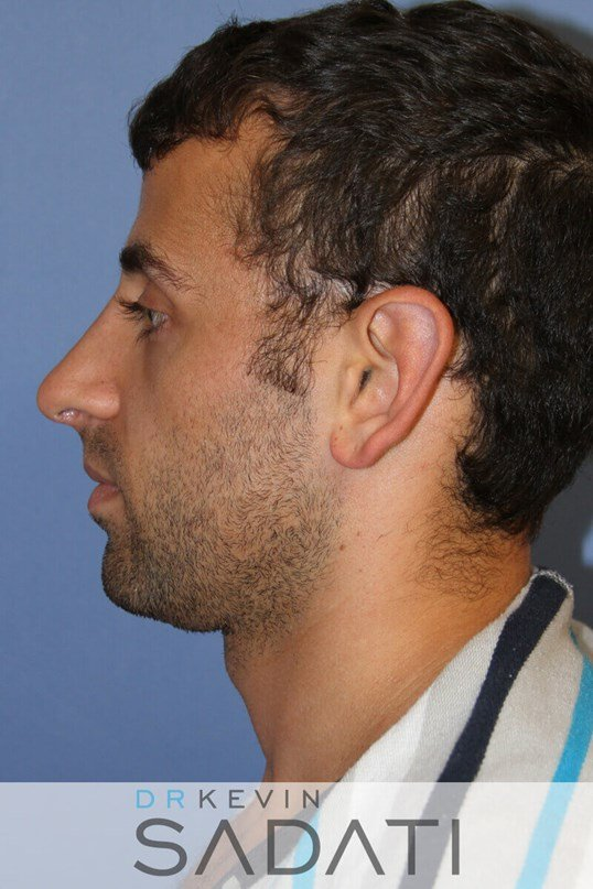 Male Rhinoplasty Left View After