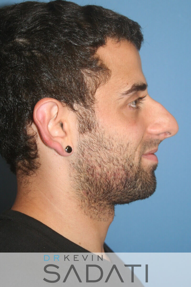 Male Rhinoplasty Right View Before