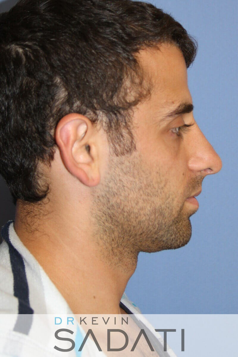 Male Rhinoplasty Right View After