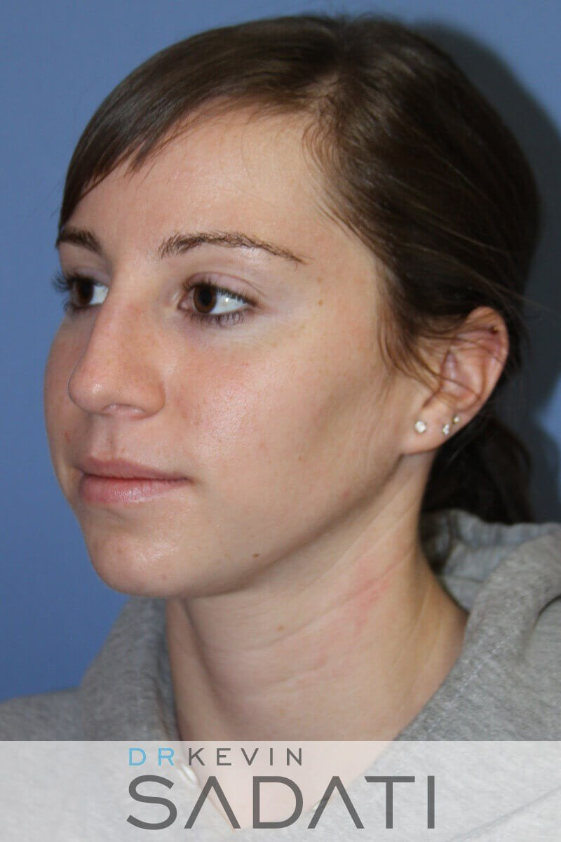 Rhinoplasty Oblique View Before