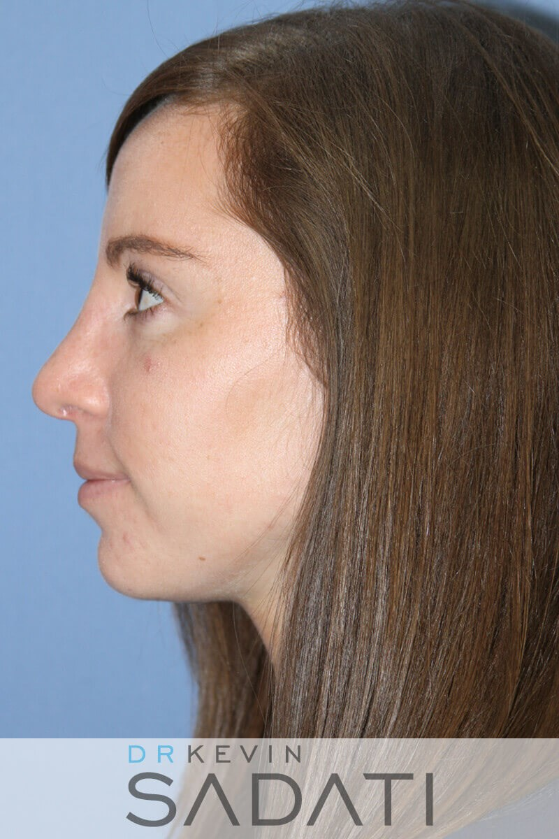 Rhinoplasty Left View After