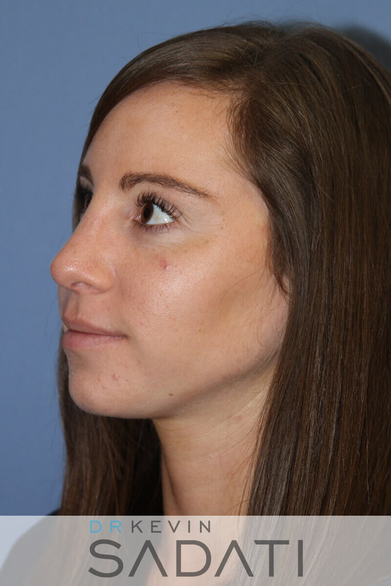 Rhinoplasty Oblique View After