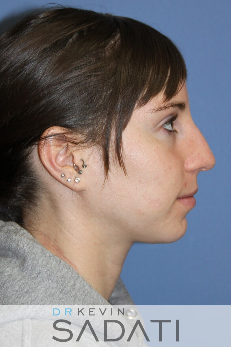 Rhinoplasty Right View Before