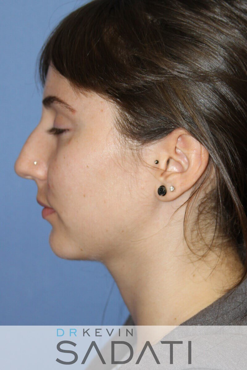 Teen Rhinoplasty Left View Before
