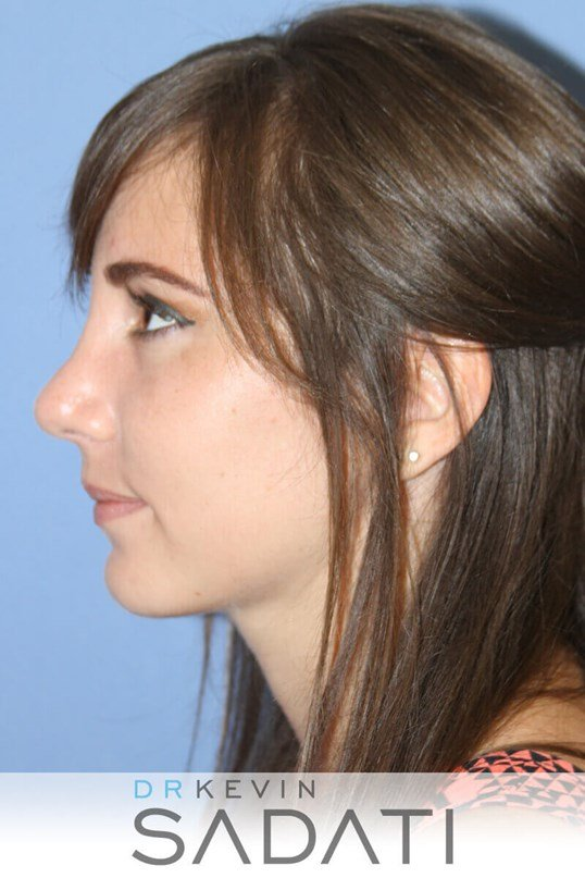 Teen Rhinoplasty Left View After
