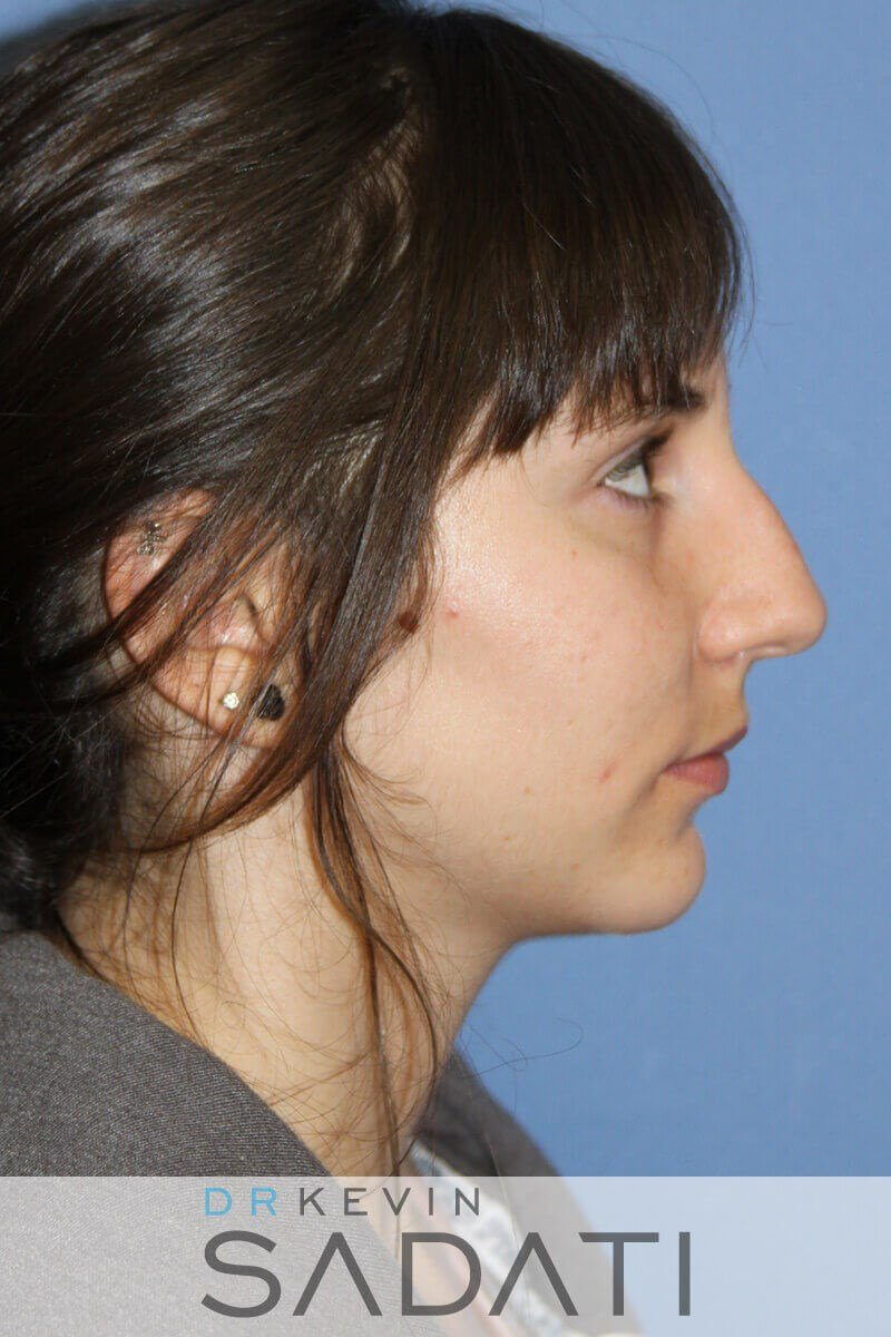 Teen Rhinoplasty Right View Before