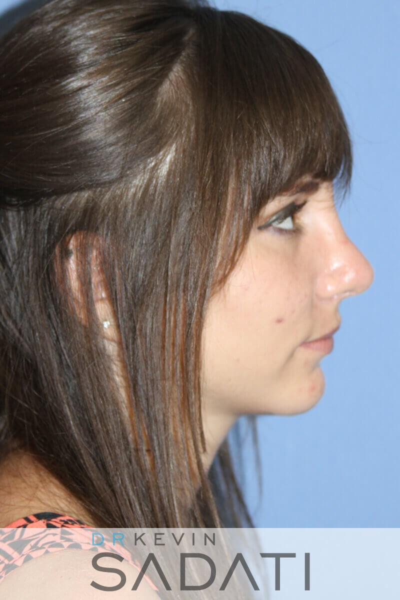 Teen Rhinoplasty Right View After