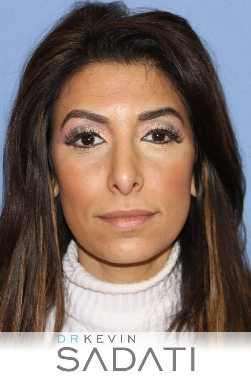 Female Ethnic Rhinoplasty Before