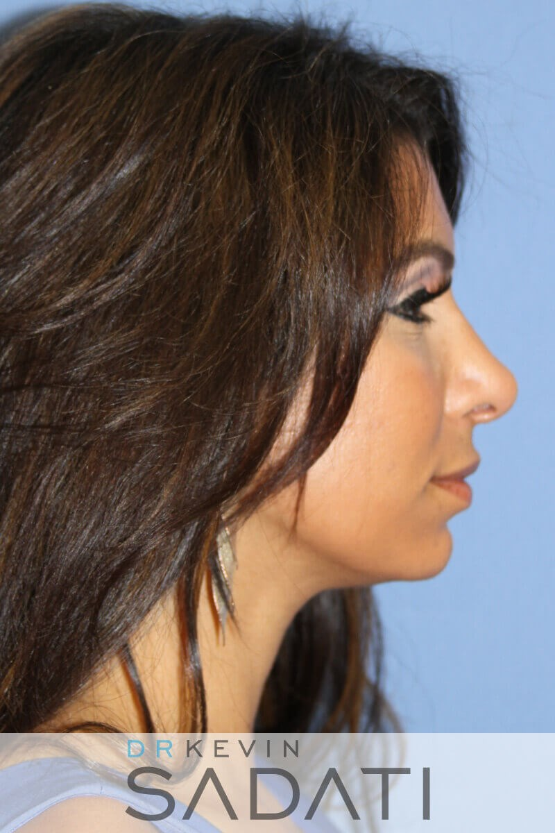 Female Ethnic Rhinoplasty After