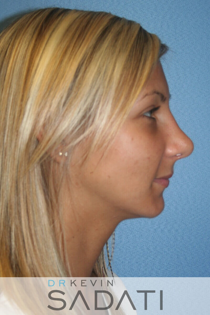 Rhinoplasty Right View After