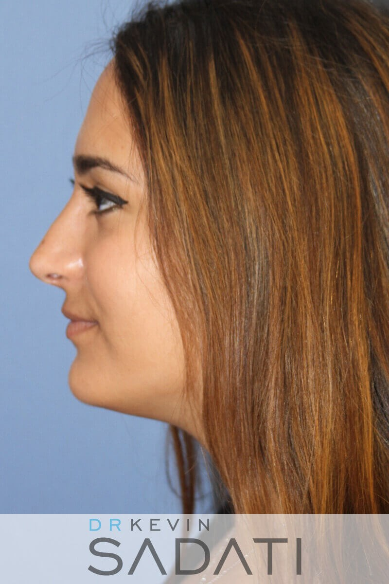 Teen Rhinoplasty Front View After