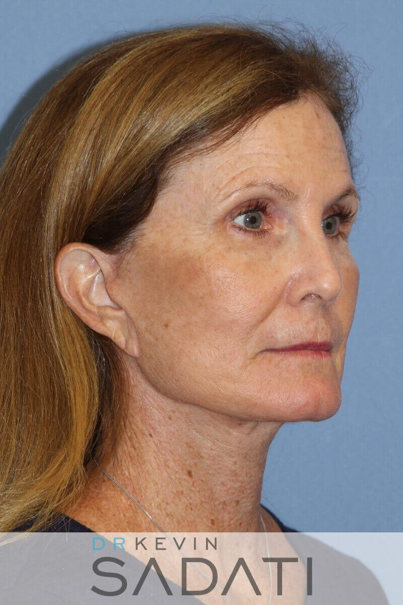 Facelift Before and After After
