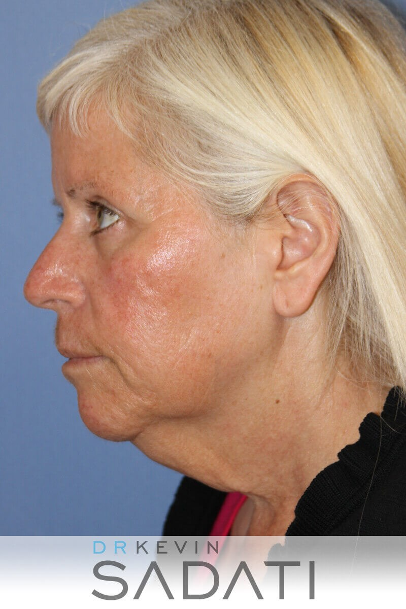 Female Facelift Before & After Before