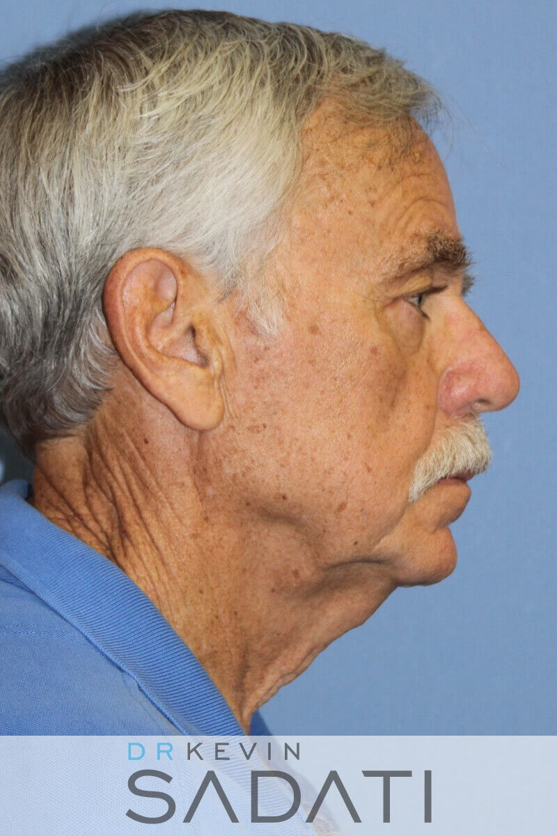 Male Facelift Before and After Before