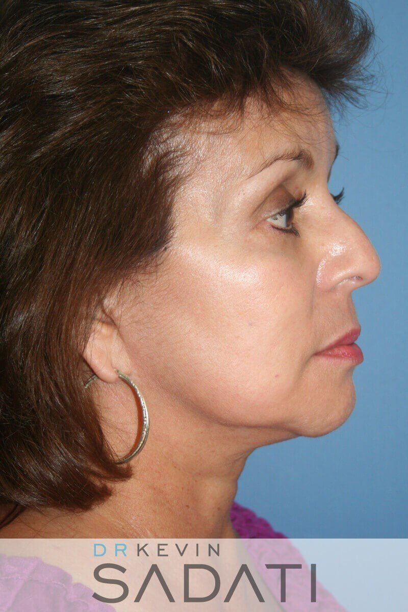 Neck Lift Before and After Before Neck Lift