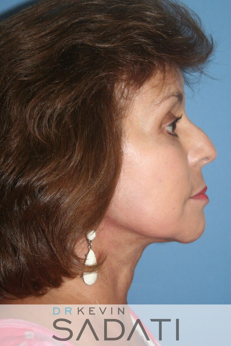 Neck Lift Before and After After Neck Lift