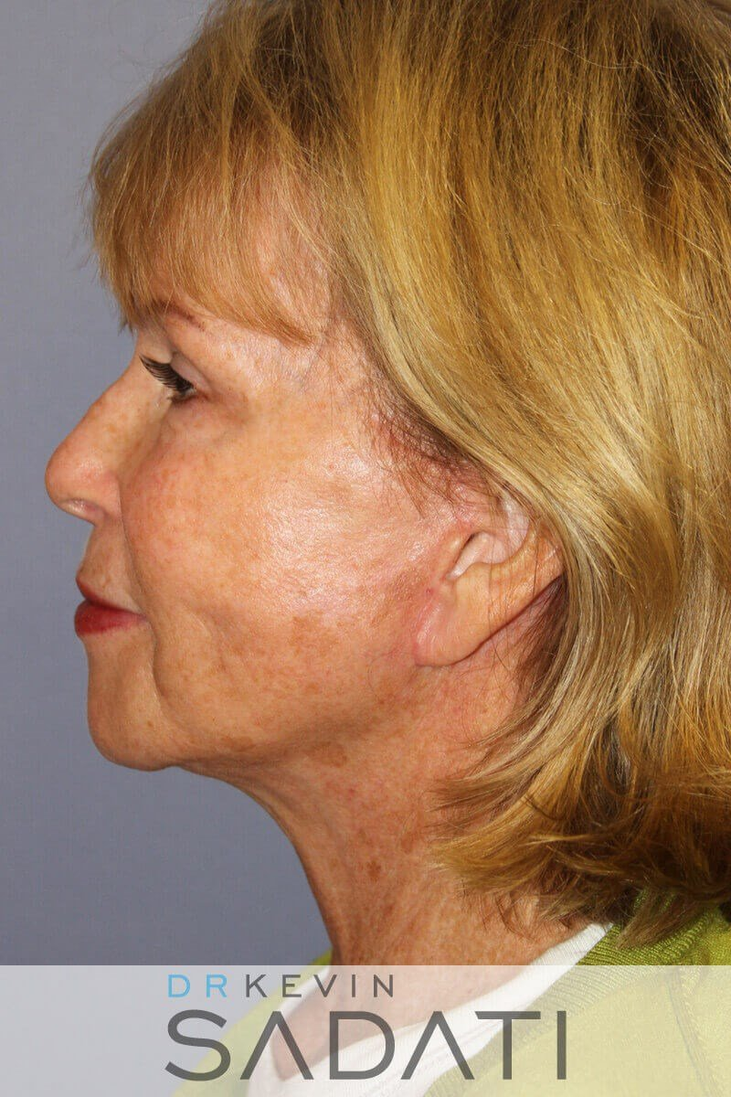 Los Angeles neck lift After
