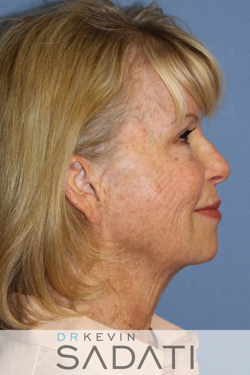 los angeles Natural Facelift Before