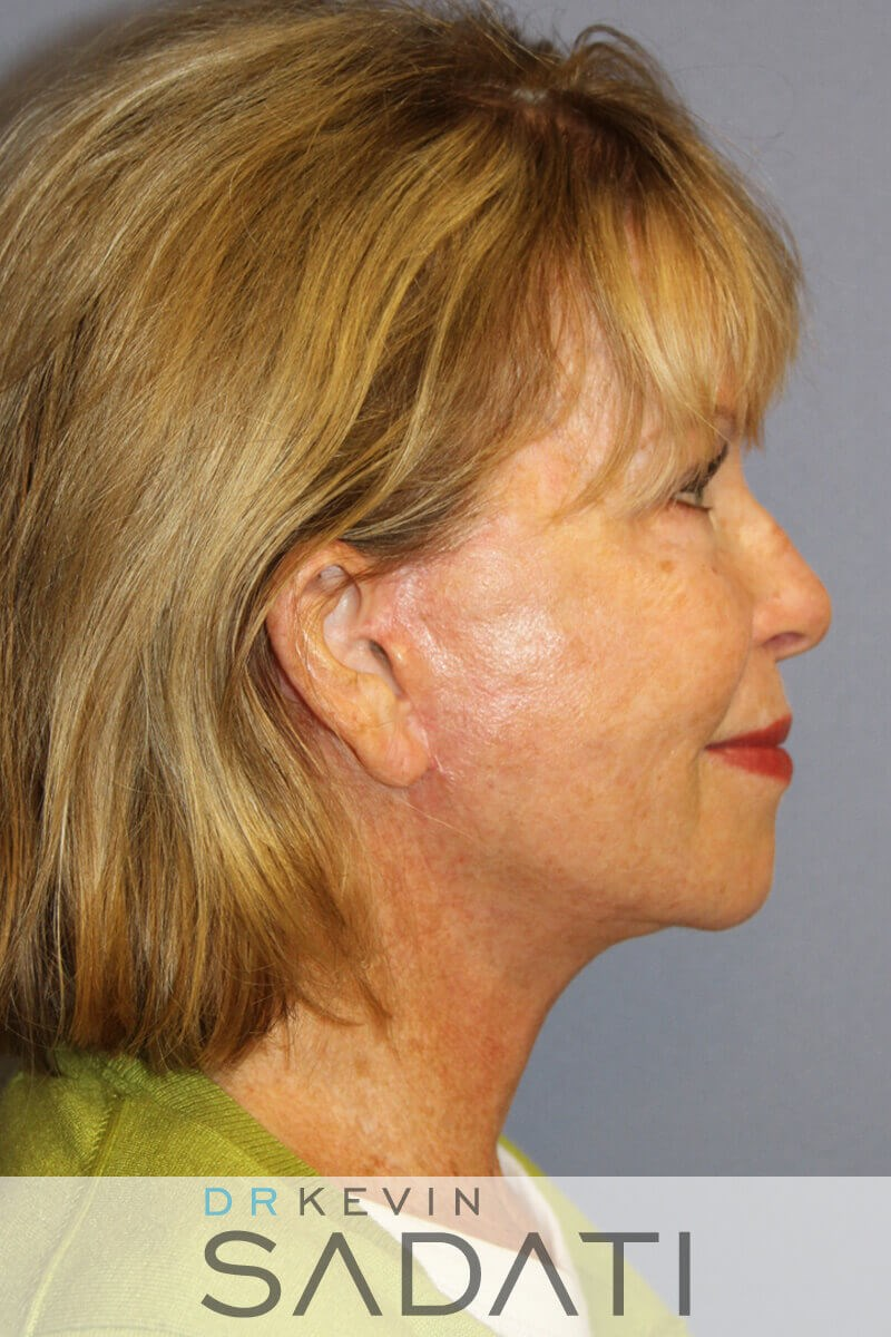 los angeles Natural Facelift After