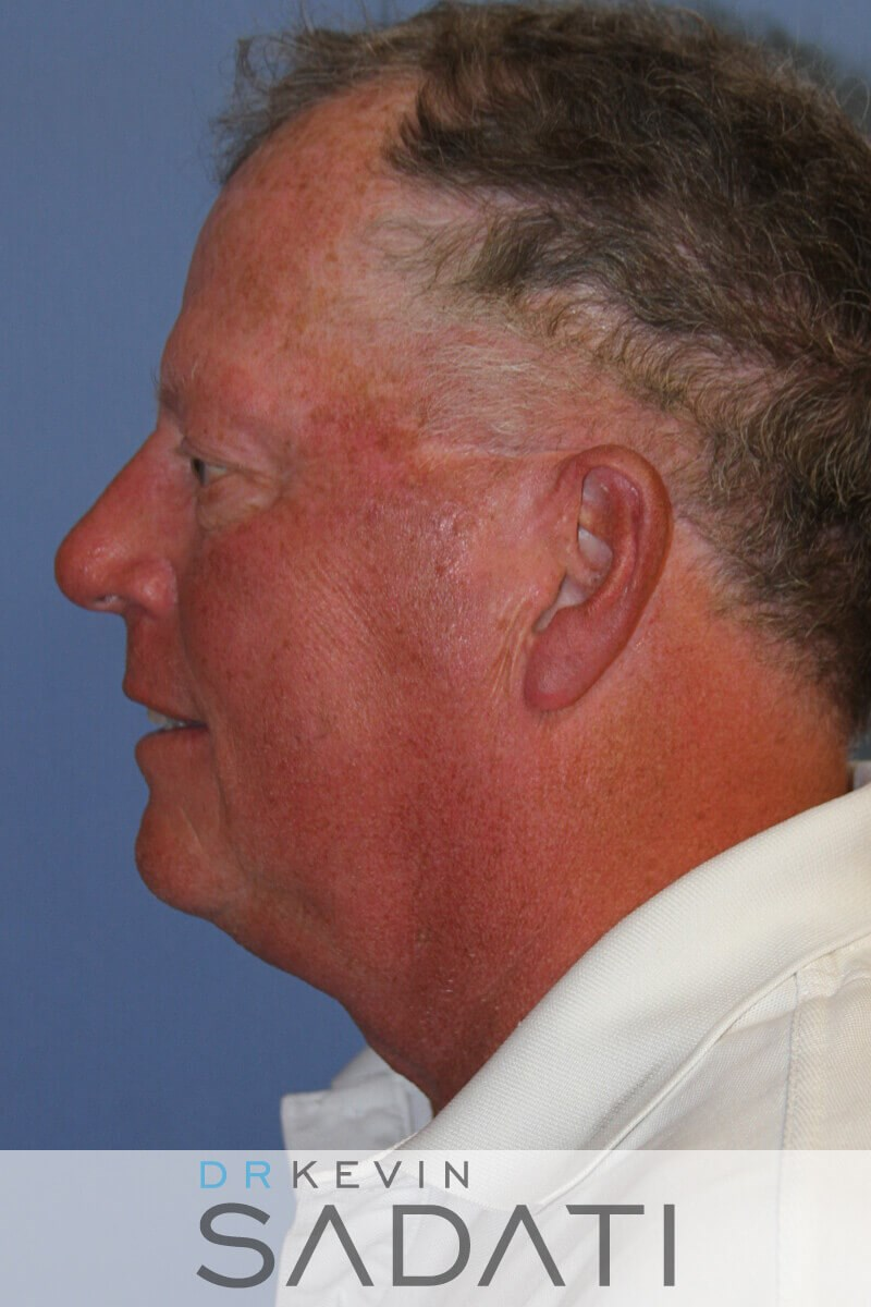 Orange County Male Facelift Before
