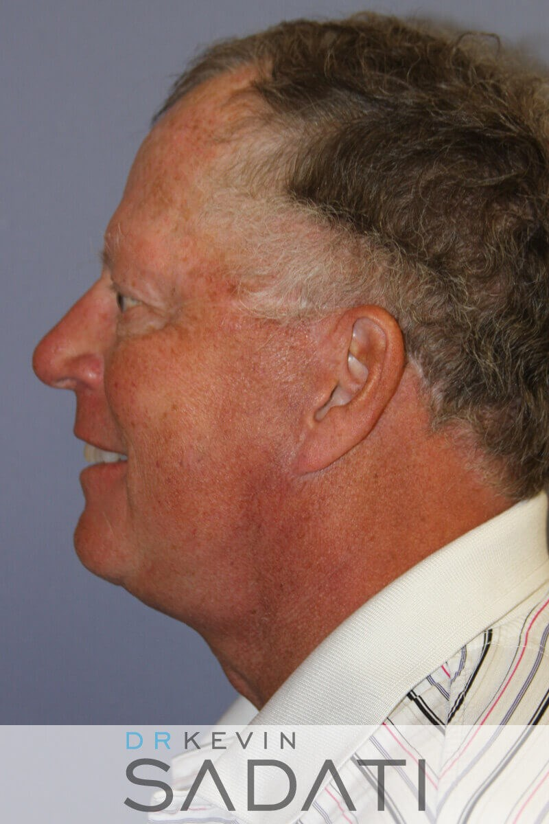 Orange County Male Facelift After