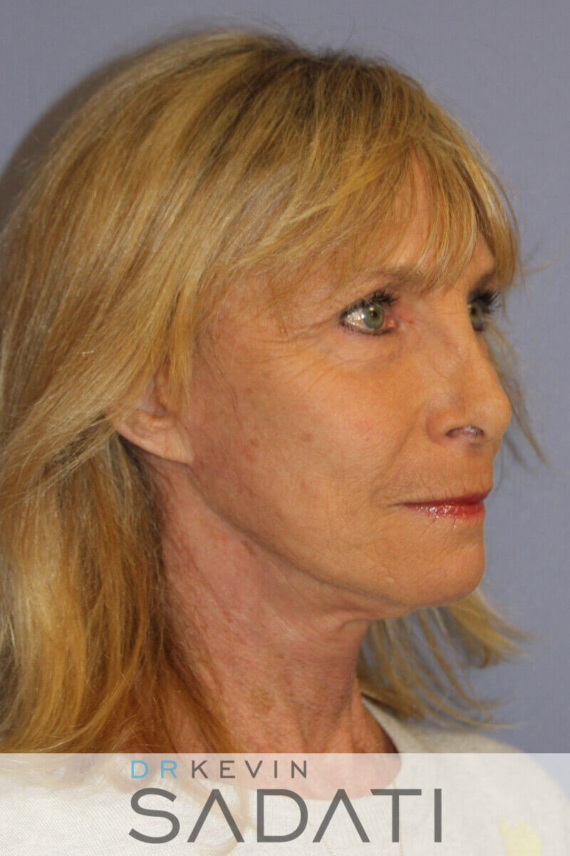 Female Face and Neck Lift After