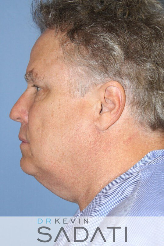 Male Facelift Orange County Before