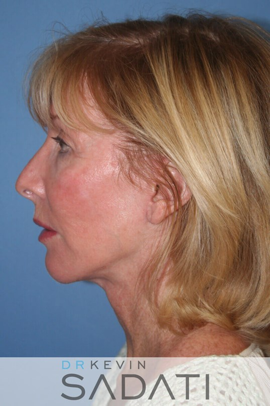 LOS ANGELES FACELIFT After Facelift Surgery