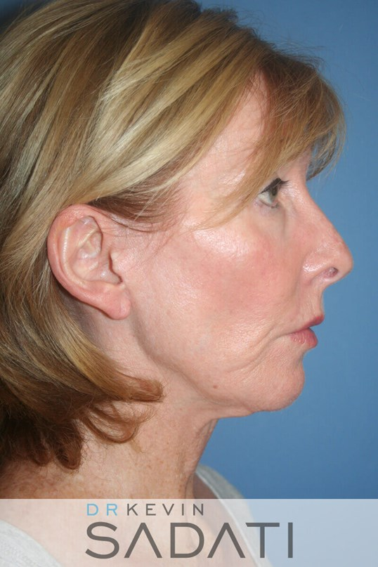LOS ANGELES FACELIFT Before Facelift Surgery