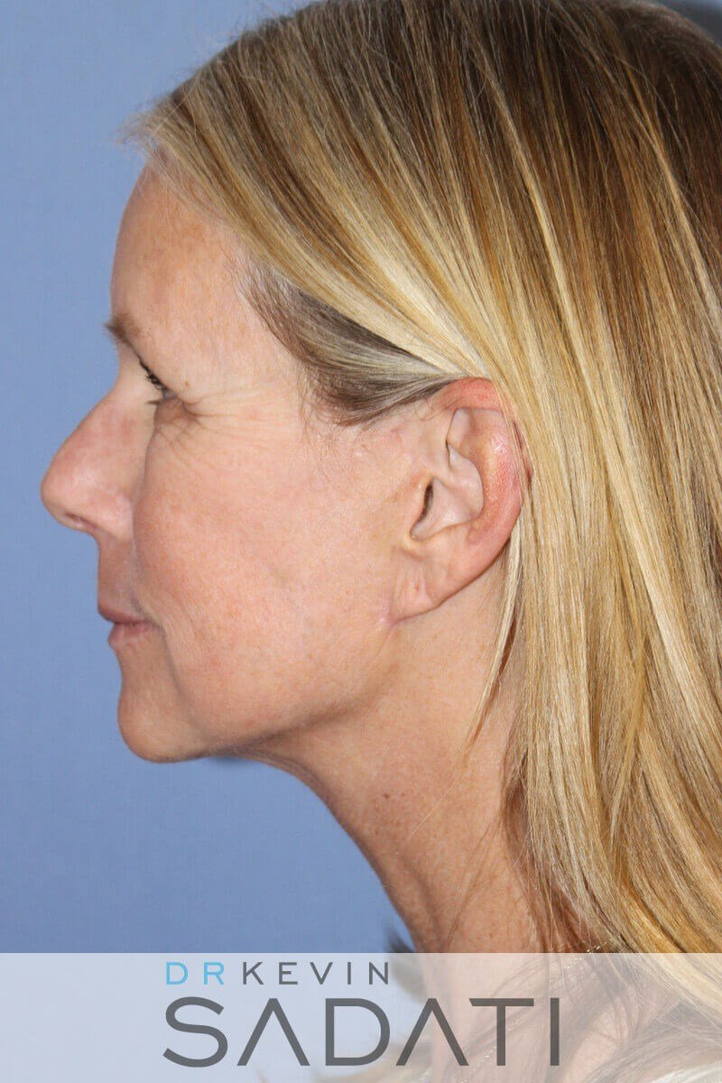 Natural Facelift Newport Beach After