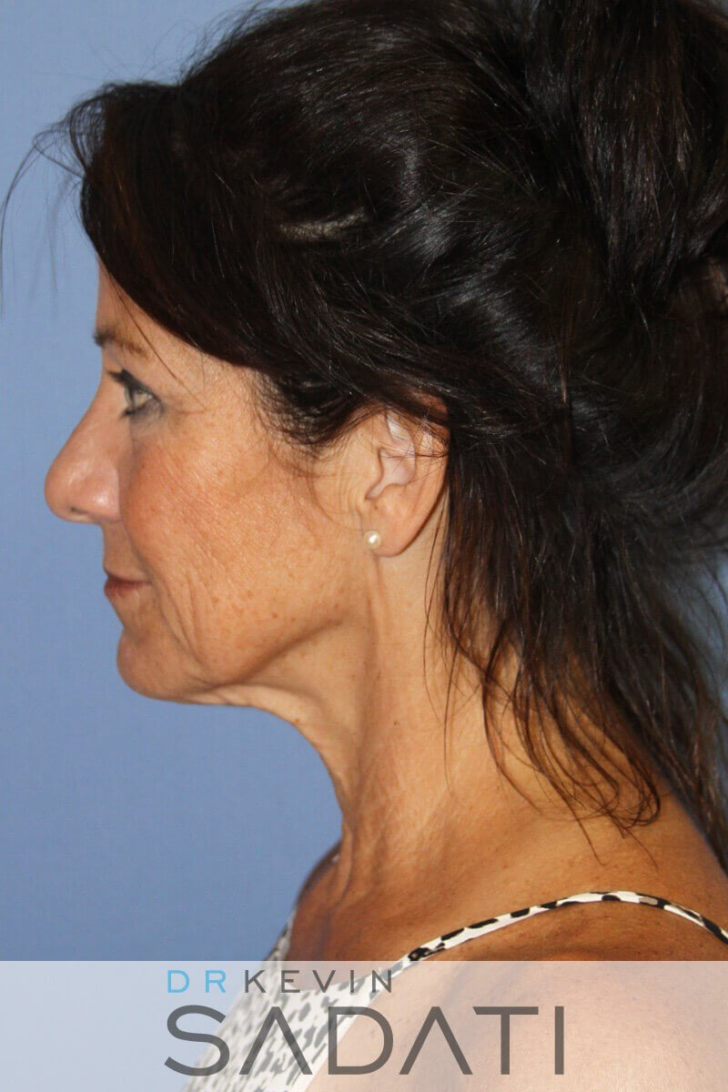 Female Facelift Newport Beach Before