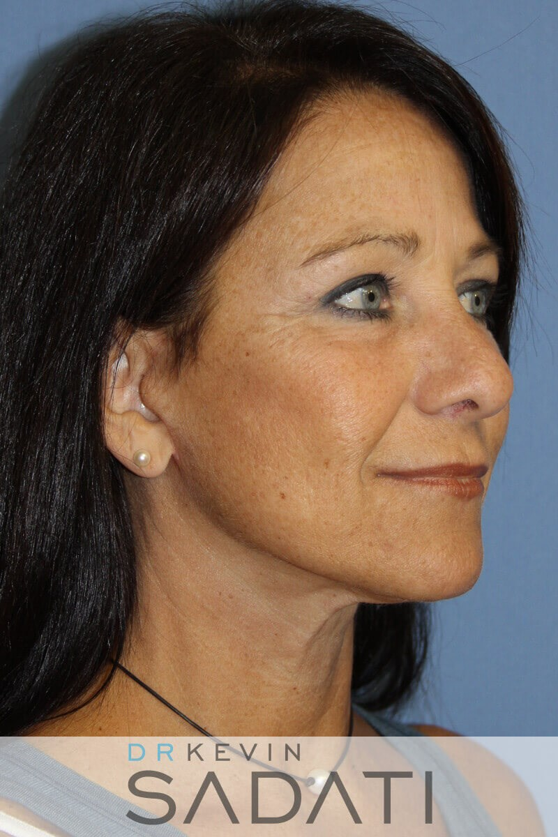 Female Facelift Newport Beach After