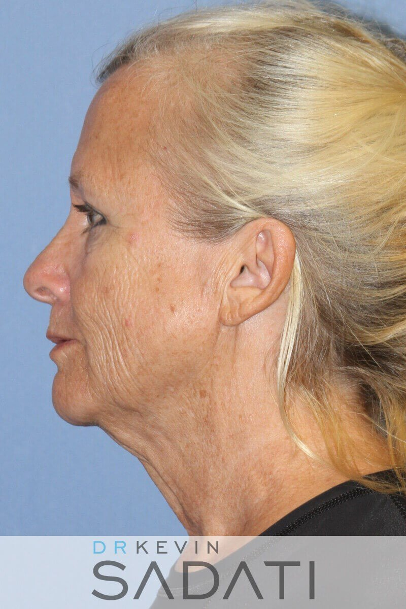 Facelift Surgery Orange County Before