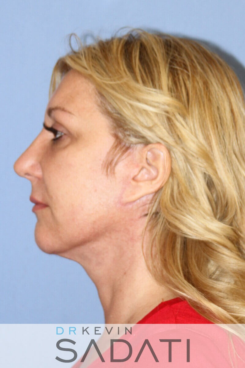 Orange County Facelift Results After