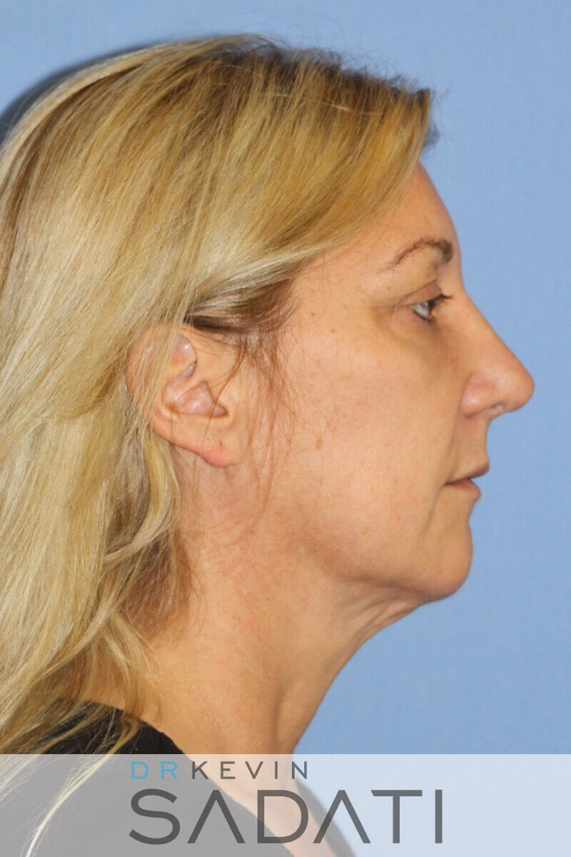 Orange County Facelift Results Before