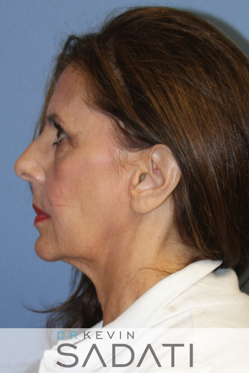 Female Facelift With Fat Graft Before