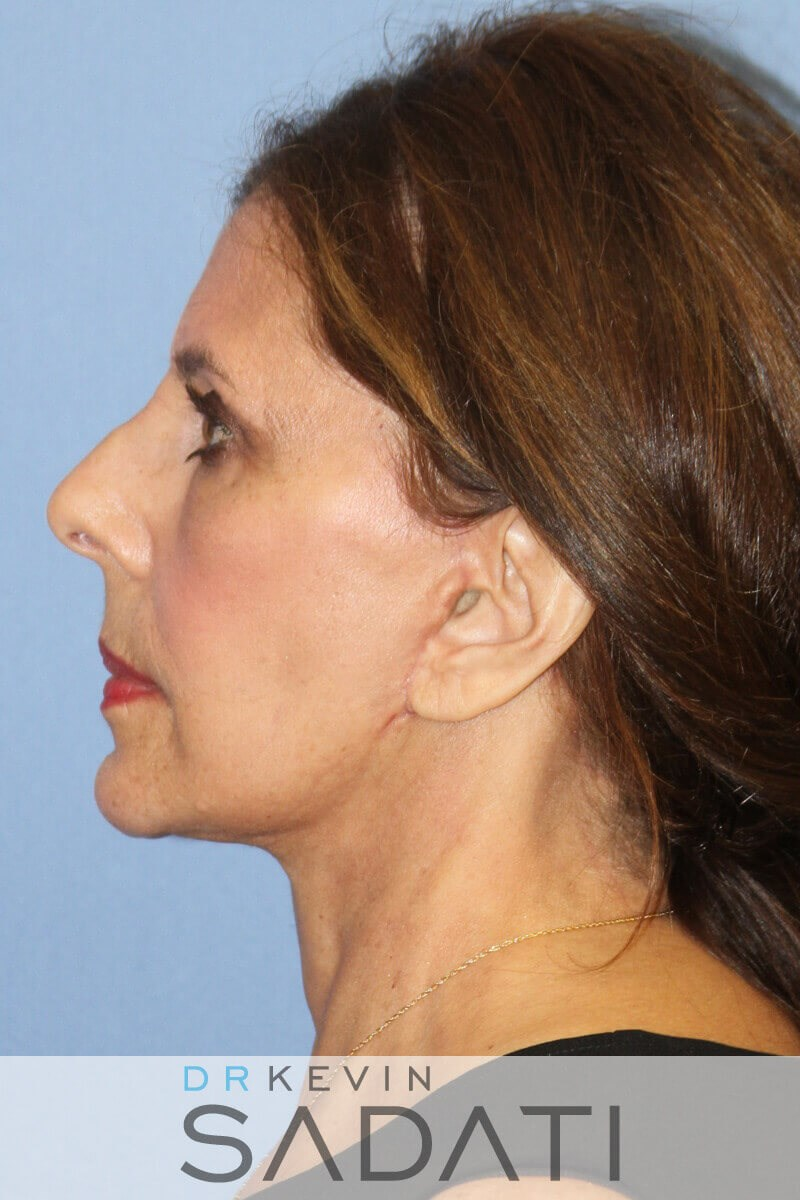 Female Facelift With Fat Graft After