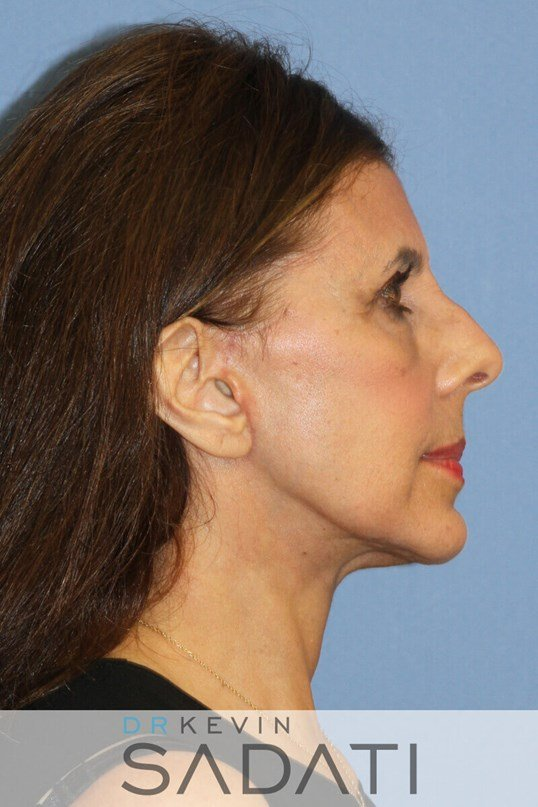 Female Facelift Before & After After
